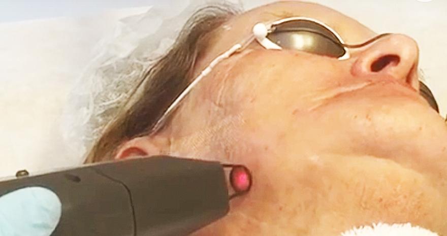 Tratamento de Rugas e melhora do relevo da pele com  Laser Fracionado de Erbuim - YAG